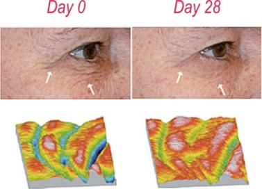 CHOLLEYPHYTOCELL_Booster_results