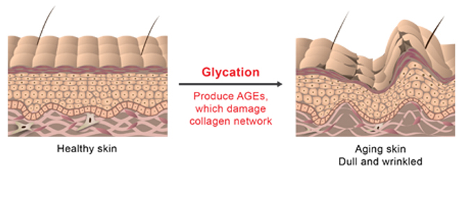 CHOLLEY_Glycation