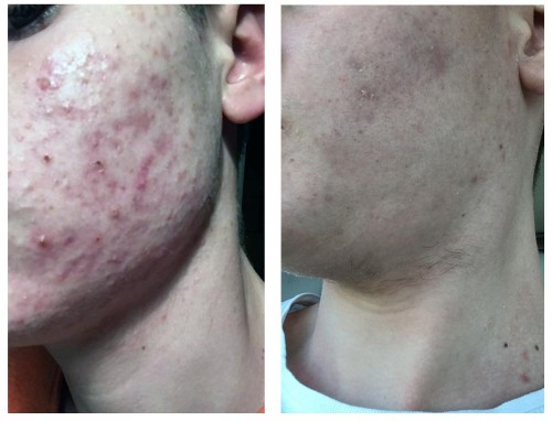 CHOLLEY_anti acne_product