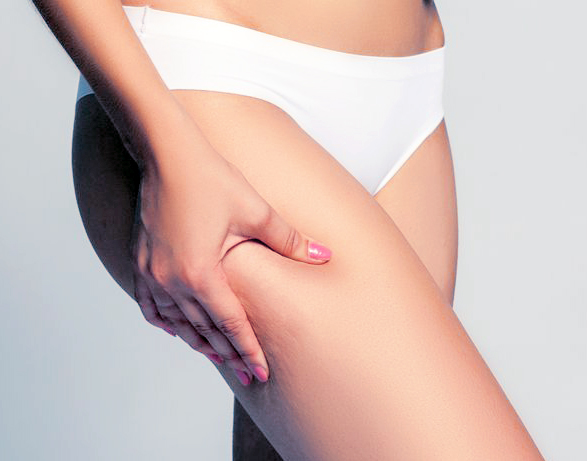 CHOLLEY Anti cellulite product