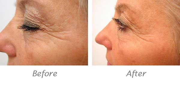 Immagine_antiaging_cholley