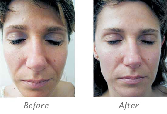 about-antiaging_cholley